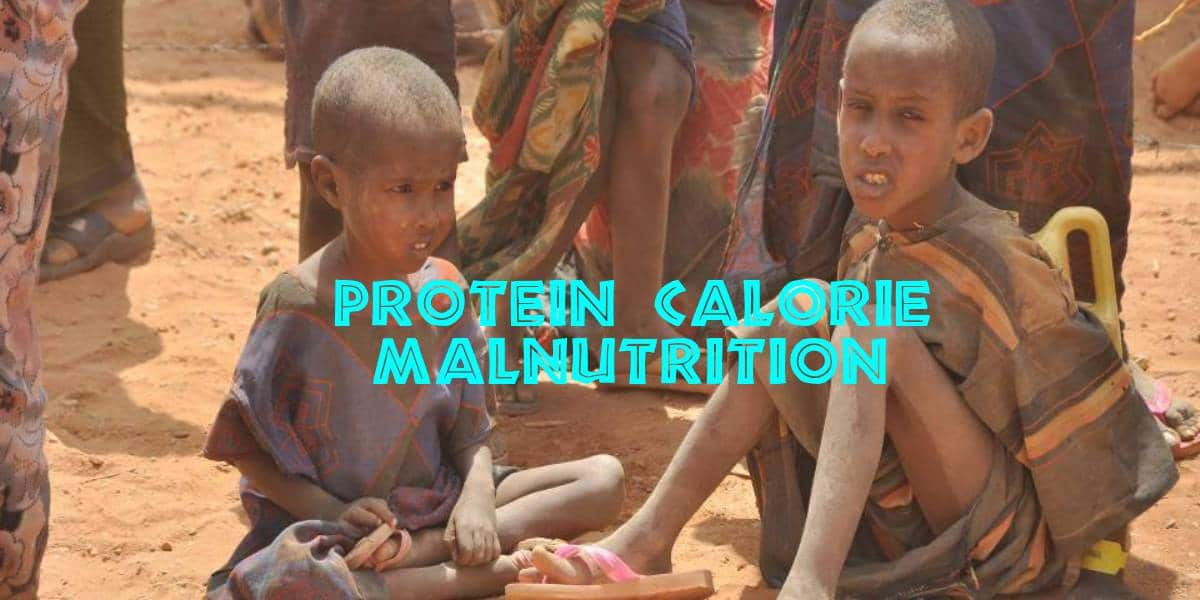Protein Calorie Malnutrition